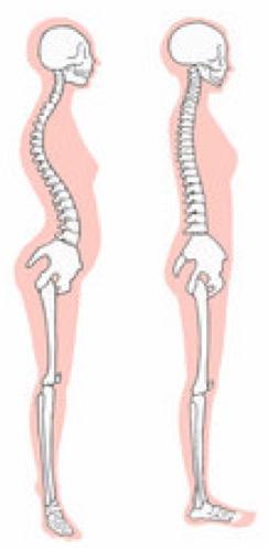 姿勢がととのえば一生歩ける〜骨盤の傾き「前傾」