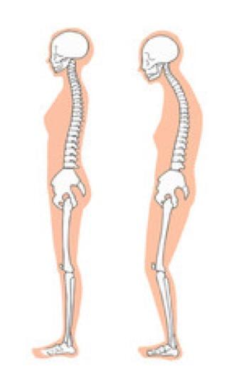 姿勢がととのえば一生歩ける〜骨盤の傾き「後傾」